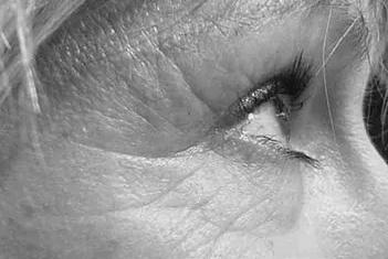 radiofréquence visage avant